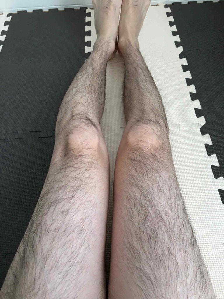 脱毛前写真 脚全体