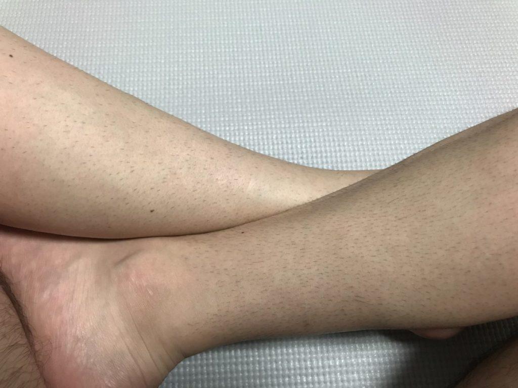 トリマのレーザー脱毛比較(6日間)
