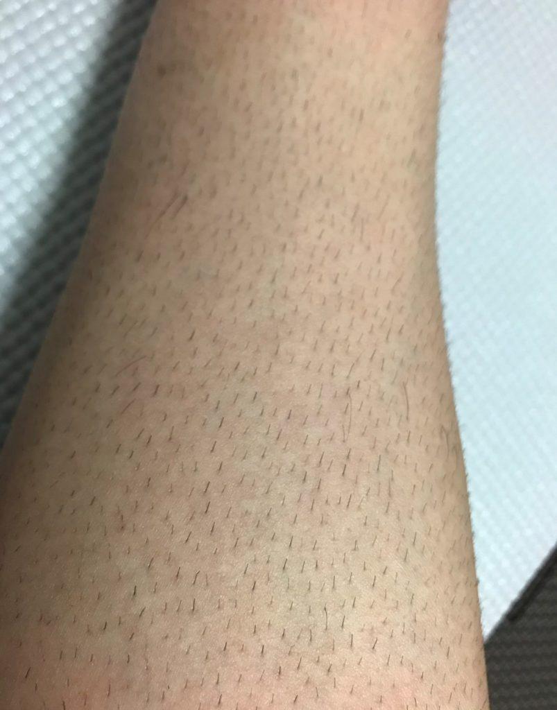 レッグヘアトリマですね毛を剃った後