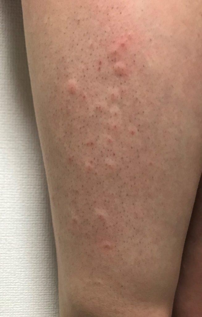 脱毛前後に予防接種 赤いブツブツ