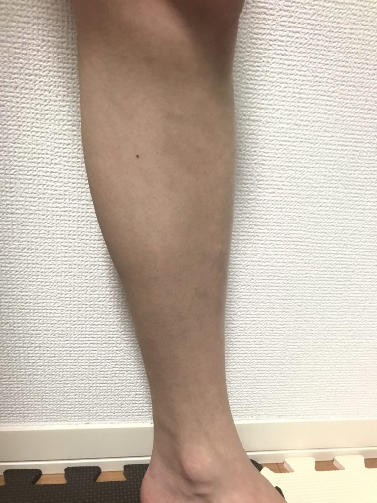 脱毛準備 剃った後の脚