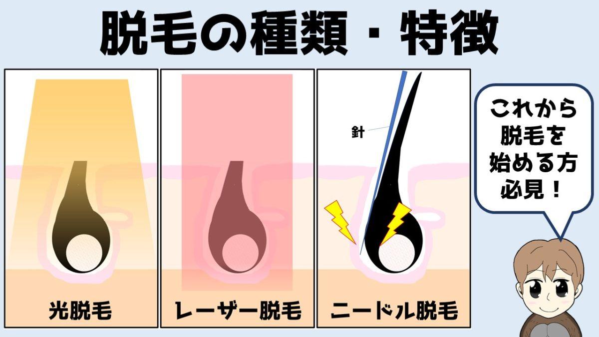 脱毛の種類・特徴