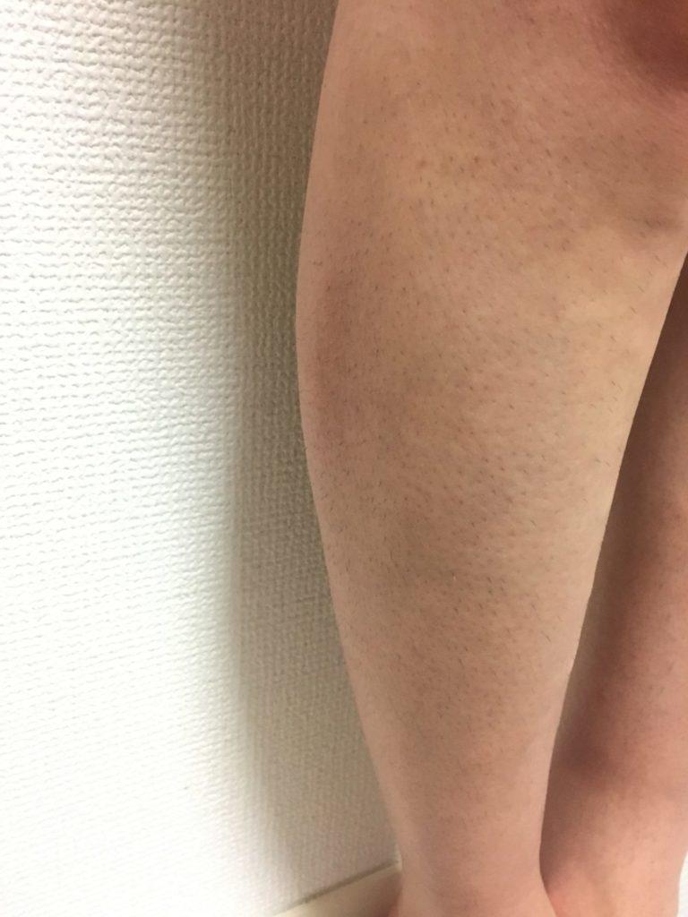 男の脚脱毛