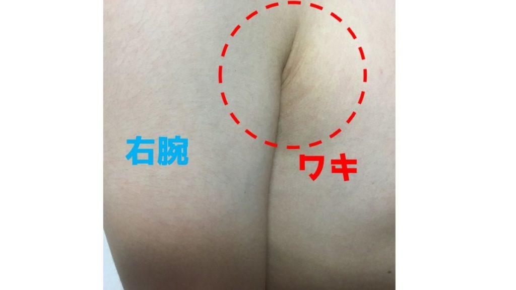 男のワキ脱毛日記③